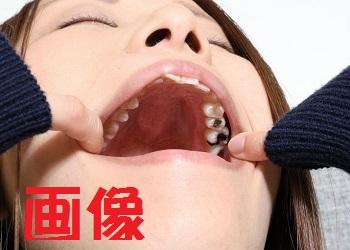 紗知ちゃんの歯 インレーいっぱい 画像データ
