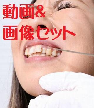 春香ちゃん 前歯に激痛が ★★動画&画像セット★★