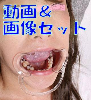 遥ちゃんの歯 満身創痍!★★動画&画像セット★★