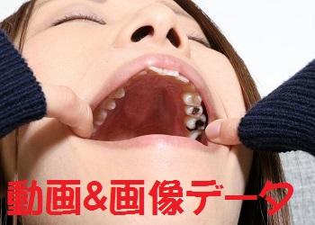 紗知ちゃんの歯 ★★動画&画像セット★★もっと銀歯あるじゃん!?