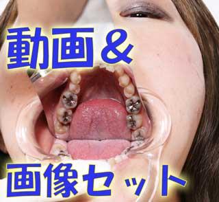 元歯科助手 優衣ちゃんの歯はインレー8本も!★★動画&画像フルセット★★