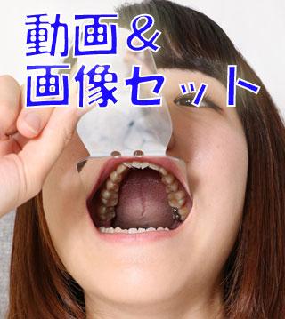 ひかりちゃんの歯 銀歯と虫歯★★動画&画像セット★★