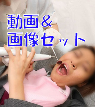 がっつりクラウン娘★★動画&画像セット★★亜理紗ちゃんの虫歯をスケーラーで