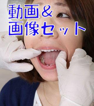 由香ちゃんの白い歯★★動画&画像セット★★ 意識は高いけど治療痕が