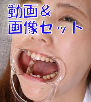 公園にいた制服姿の亜美ちゃんに「歯見せて」って声かけてみた★★動画&画像セット★★