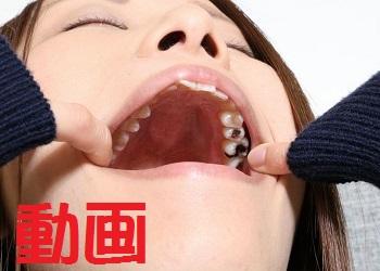 紗知ちゃんの歯 もっと銀歯あるじゃん!? 動画