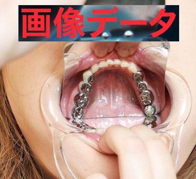 セナちゃんの口腔内は宝石箱 画像データ50枚