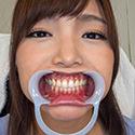 開口器,歯,口内,口腔,噛みつき,口,M男,歯フェチ,噛まれ, Download