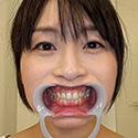 【歯フェチ】羽月希ちゃんの歯を観察しました!