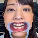 【歯フェチ】あべみかこちゃんの歯を観察しました!