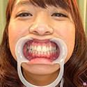 【歯フェチ】可愛すぎる若葉ちゃんの歯をじっくり観察させていたただきました!【尾上若葉】
