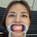 【歯フェチ】武藤あやかさんの歯を観察しました!