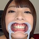 【歯フェチ】阿部乃みくちゃんの歯を観察しました!