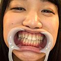 【歯フェチ】星川麻紀ちゃんの立派な天然歯を観察しました!【星川麻紀】