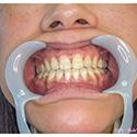【歯フェチ】OLナミさんの歯を観察!【素人】