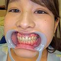 【歯フェチ】桜ちなみちゃんの歯を観察しました!