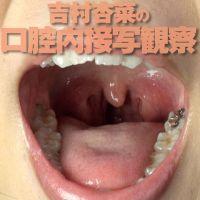 開口器を装着した吉村杏菜ちゃんの口腔内、銀歯や喉ちんこを接写観察
