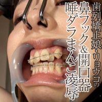 歯列矯正中のリョウコを鼻フック&開口器奴隷に仕立ておまんこ大凌辱
