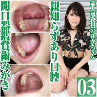 Amateur clerk Yuka's pain disappeared Wisdom Teeth Discovery!? O