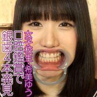 【口腔フェチ】女子校生・希美ゆうの口腔内鑑賞(銀歯4本)歯みがき