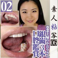 歯フェチ◎専業主婦かおりが開口器装着で銀歯3本の口腔喉ちんこ鑑賞