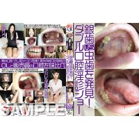 sample Discover silver teeth vs caries! Hitomi of double oral ob