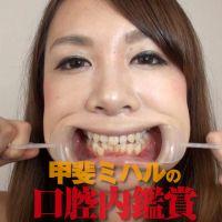 【口腔フェチ】開口器をつけた甲斐ミハルの歯・歯茎・粘膜を接写鑑賞