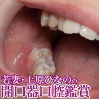 【口腔フェチ】開口器をつけた上原ひなのの口腔内鑑賞&歯みがき