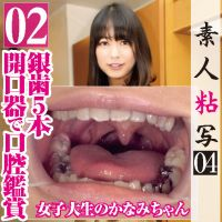 Opener mounted watch [tooth fetish] Ginha five oral cavity of th