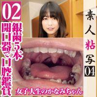 【歯フェチ】女子大生かなみちゃんの銀歯5本口腔を開口器装着鑑賞