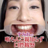 【口腔フェチ】開口器をつけたすみれの歯・喉ちんこ・親知らずを観察