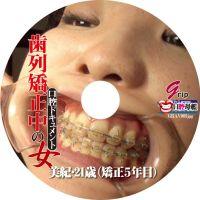 【1本丸ごとDL】歯列矯正中の女/素人娘の美紀ちゃん