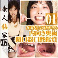 素人女子大生まどかさんの内向き奥歯が特徴の口腔内を開口器で鑑賞