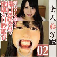 歯フェチ◎素人爆乳OLの恵ちゃんの綺麗な口腔内を開口器装着で鑑賞
