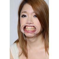 みさとちゃんの歯 「いえ、痛くないですから・・・」 ホントに?ちょっと口内見せてもらいます