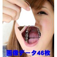 綾子ちゃんの歯。★画像データ46枚★脱離して立派なクラウン娘に