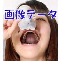 ひかりちゃんの歯 銀歯と虫歯 画像データ