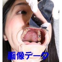 茉莉の歯 画像データ