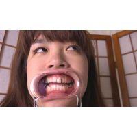 ★★銀歯だらけ さゆり★歯&開口器具使用で観察★リアリズム映像☆ 歯フェチ大興奮★★★