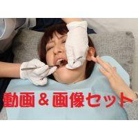 裕美ちゃん再び ★★動画&画像フルセット★★口腔クリーニング