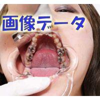 元歯科助手 結衣ちゃんの歯はインレー8本も! 画像データ