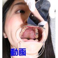 茉莉ちゃんの歯 麻酔なしで削られました。。。((+_+))