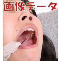 つかさちゃん、歯医者でのトラウマを語る 画像データ