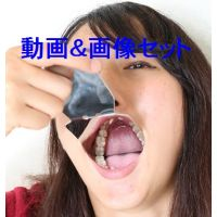 素人里穂の歯 ★★動画&画像セット★★ 4〜5年は見て見ぬふり