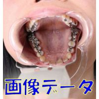 お昼休憩中の静香ちゃんに銀歯あります?って声かけてみた 画像データ