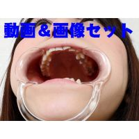 梨佳ちゃんの歯 ★★動画前後編&画像 フルセット★★