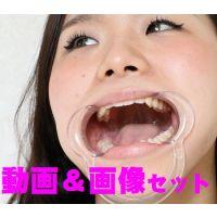 美沙ちゃんの歯は、32本揃ってます★★動画&画像セット★★
