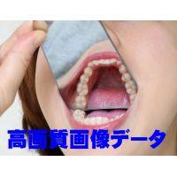 素人アンリちゃんの歯 カリエスフリー 画像データ
