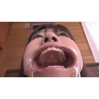 ★★★インレーいっぱい!あやちゃんの歯観察 素人フェチ 歯 ☆接写リアリズム☆ 歯フェチ大興奮★★★★★幼め可愛い美形美人★ 素