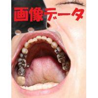 壮絶 銀歯だらけの志穂ちゃん 画像データ